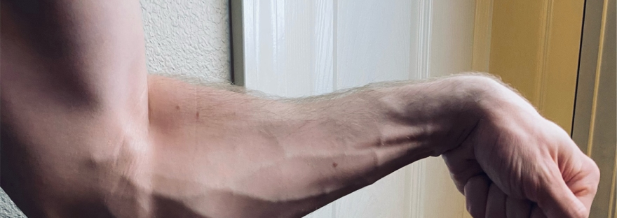 Vascular forearm at age 32.